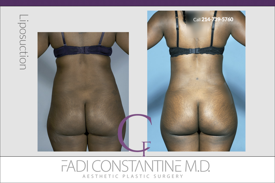 Liposuction - Rear View