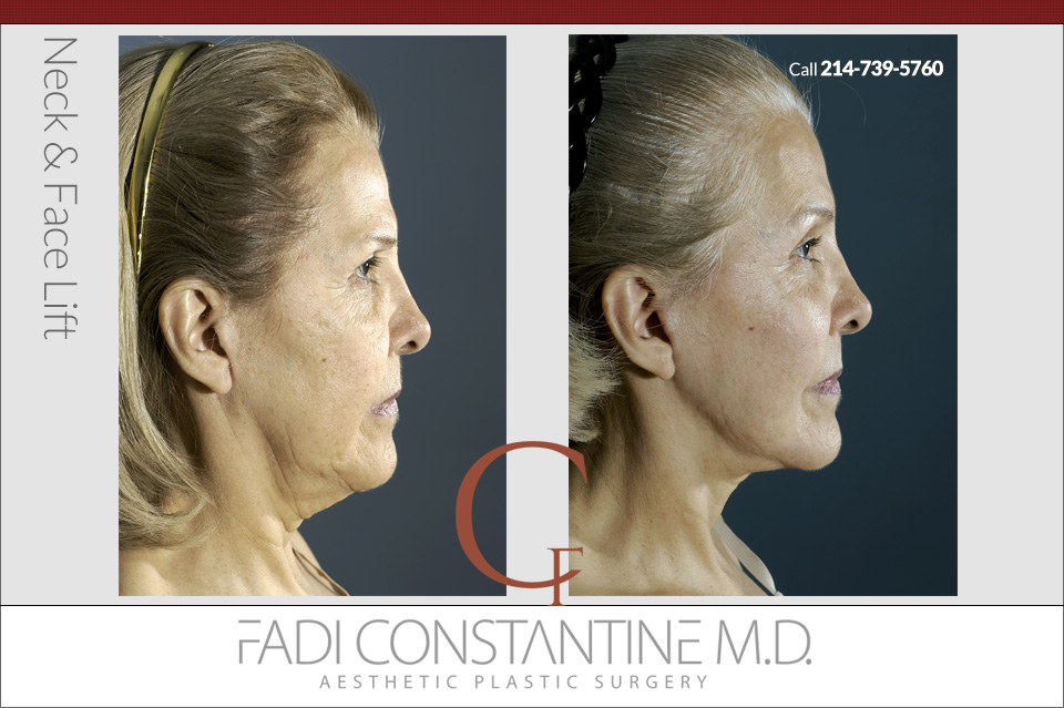 Neck & Face Lift - Side View