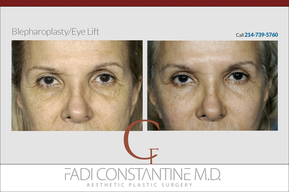 Blepharoplasty - Eye Lift dallas