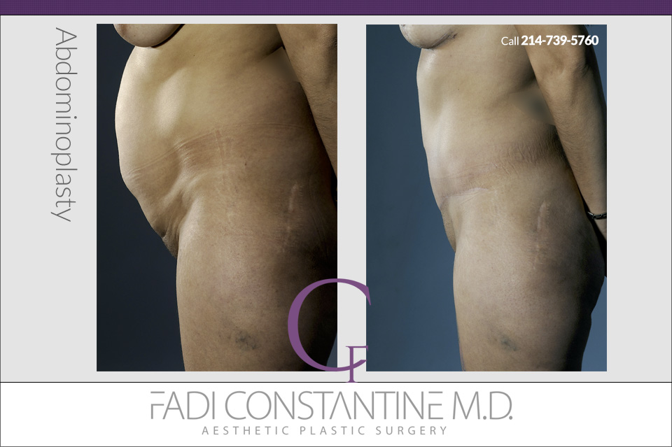 Dallas Abdominoplasty Surgeon Fadi Constantine
