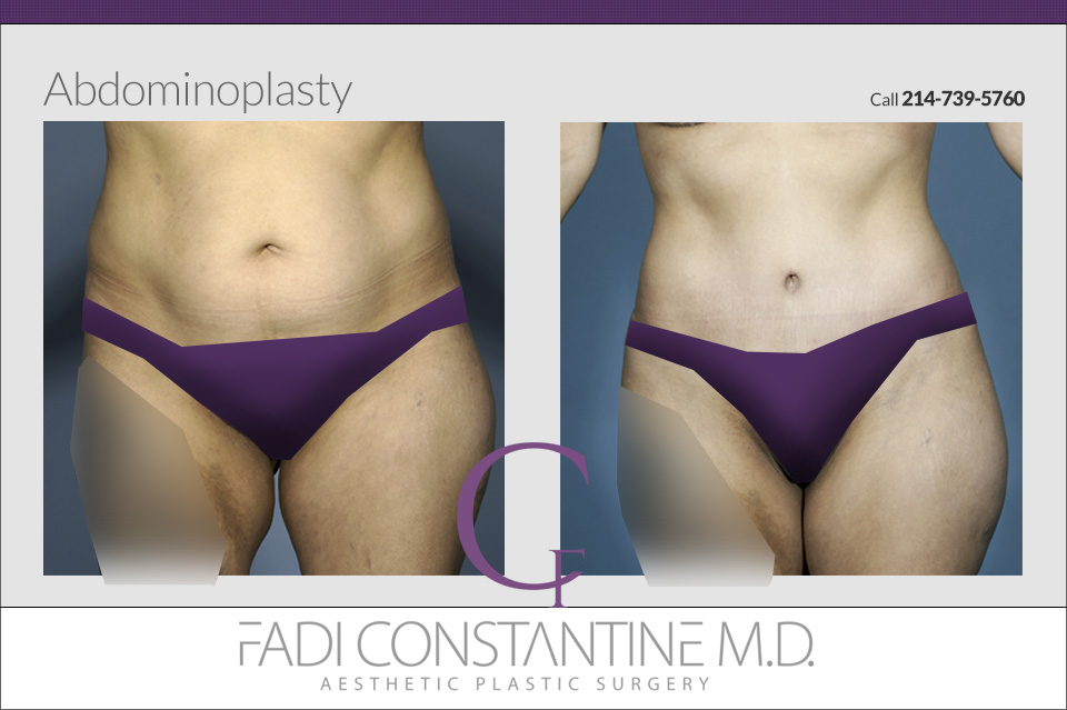 Dallas Tummy Tuck Before and After