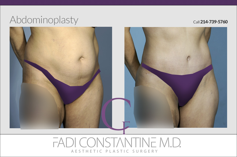 Tummy Tuck in Dallas, TX