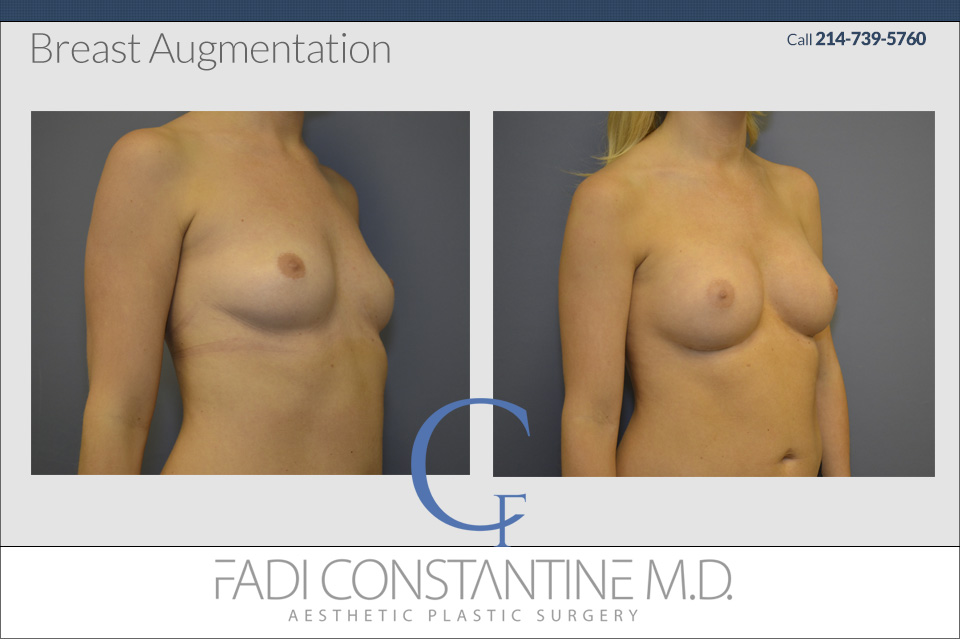 Dallas Breast Augmentation
