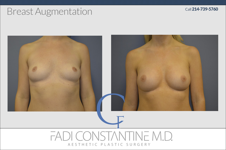 breast Augmentation in Dallas