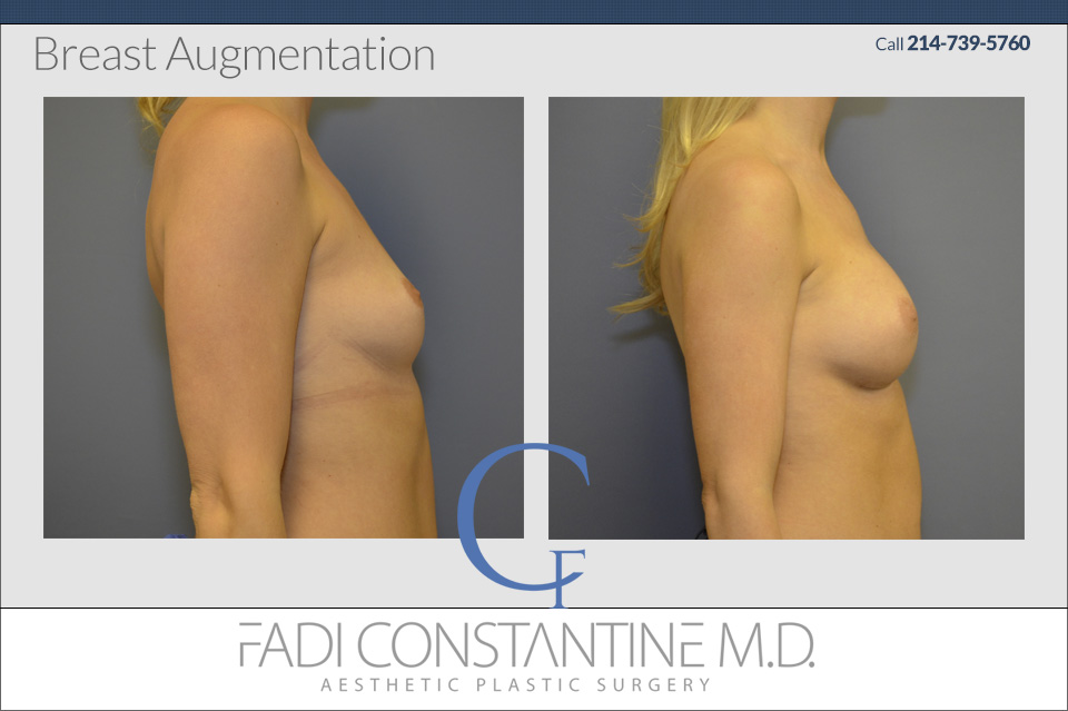 Dallas Breast Augmentation Surgeon