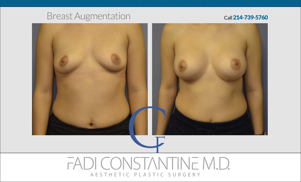 2014-9-14-fadi-constantine-super-before-and-afters-front