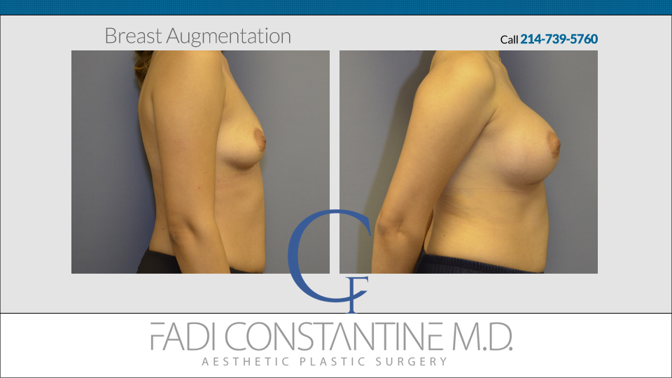 2014-9-14-fadi-constantine-super-before-and-afters-side