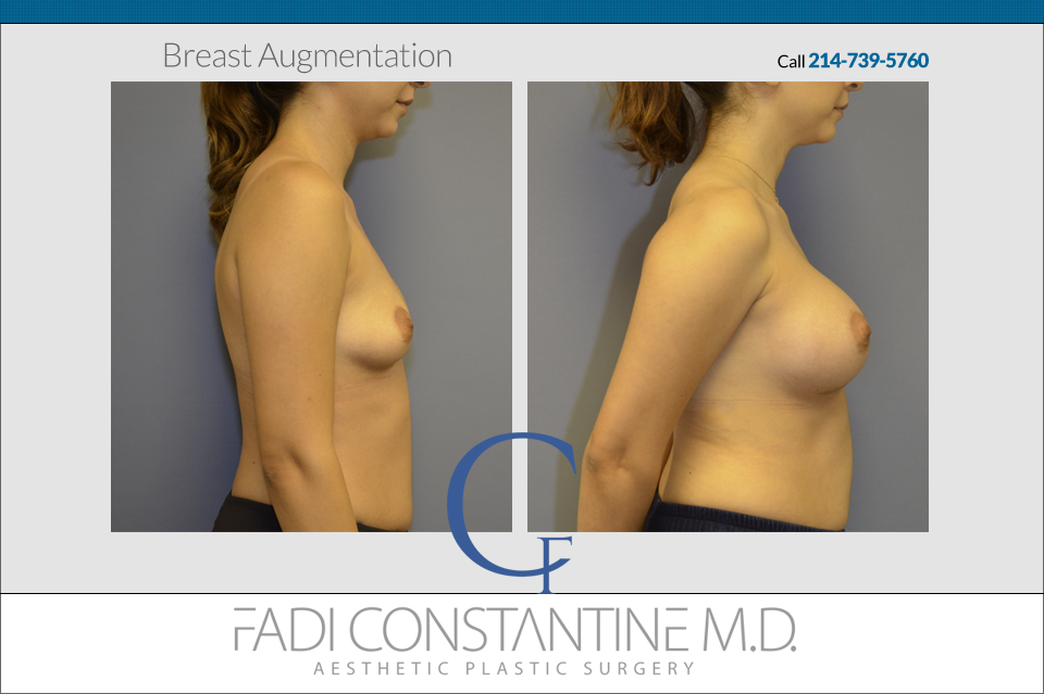 Breast Augmentation Before and After Result