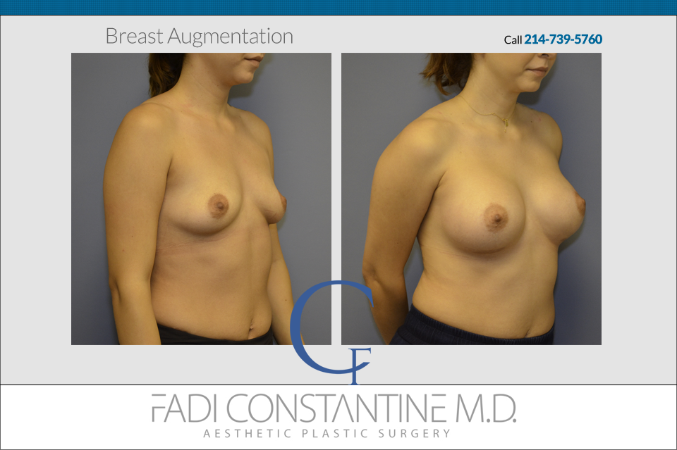 Breast Augmentation Dallas Case Study