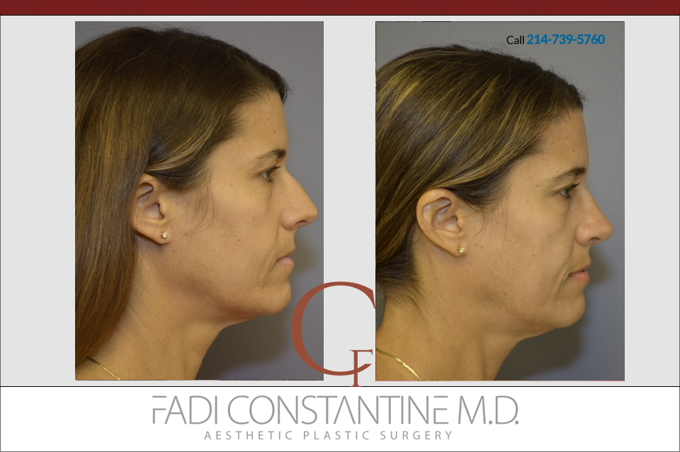 Rhinoplasty Case Study – FEB 2016