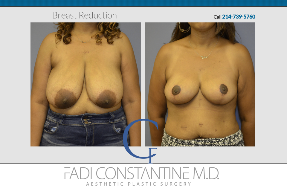 Breast Reduction Before and After Results
