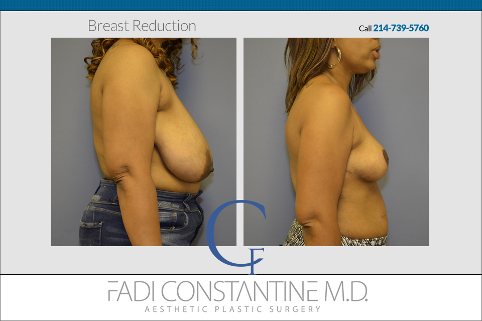 Great Result in a Breast Reduction