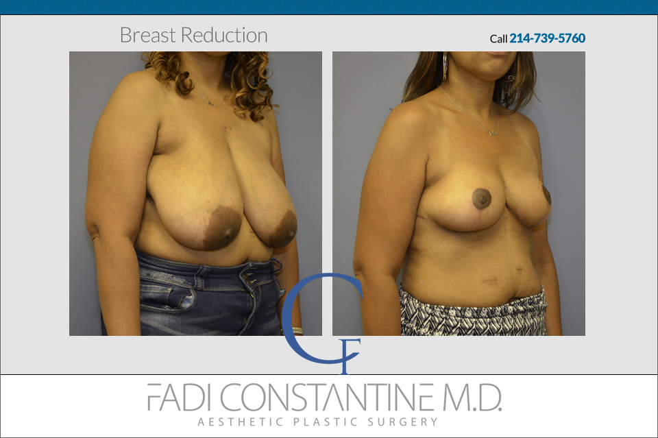 Breast Reduction at Constantine Plastic Surgery Center