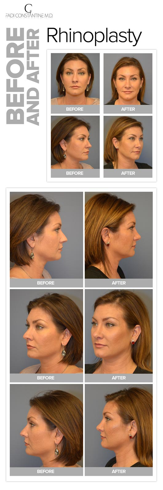 rhinoplasty-dallas-fadi-constantine-md-patient1