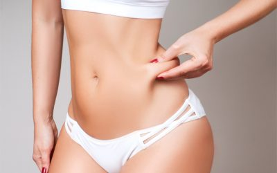 6 Common Myths About Liposuction