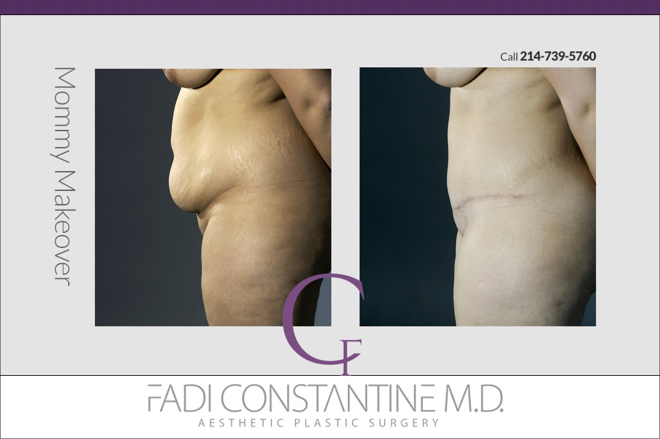 Should I get a mommy makeover?   Constantine Plastic Surgery Center