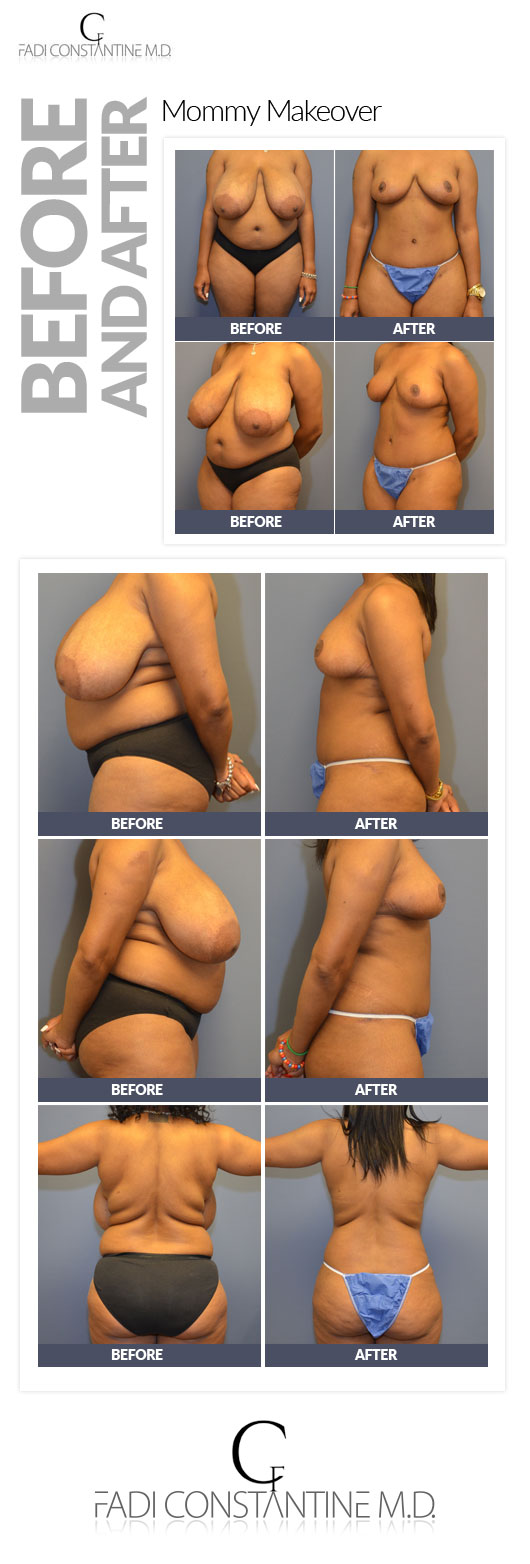 Breast-Reduction-dallas-fadi-constantine-mm-patient-Case-Study