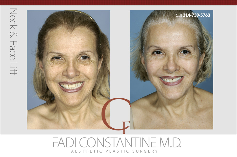 The Different Types Of Facelift Surgery To Consider Constantine